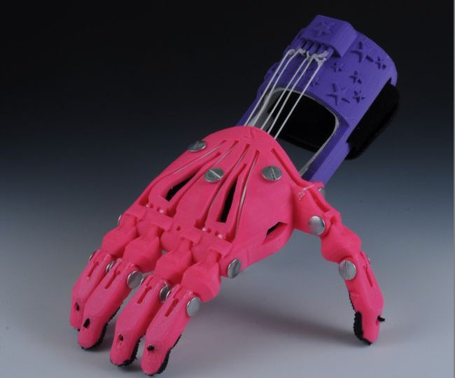 prótesis plástico mano